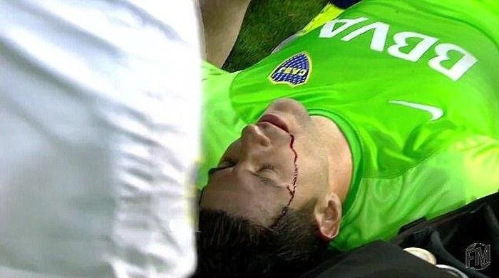 Аргентинский вратарь получил удар камнем по голове