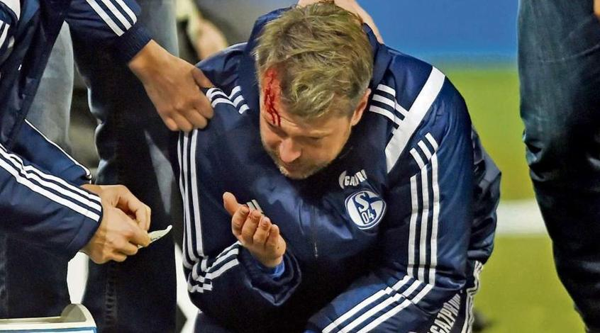 """Тренер """"Шальке"""" получил травму во время матча Бундеслиги"""