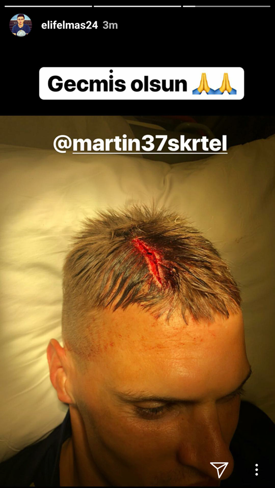 Мартин Шкртел получил шокирующую травму, но продолжил игру (Фото) - изображение 1
